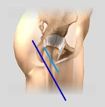 Minimally Invasive Hip Replacement